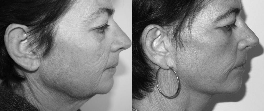 Prima e dopo Lifting del viso