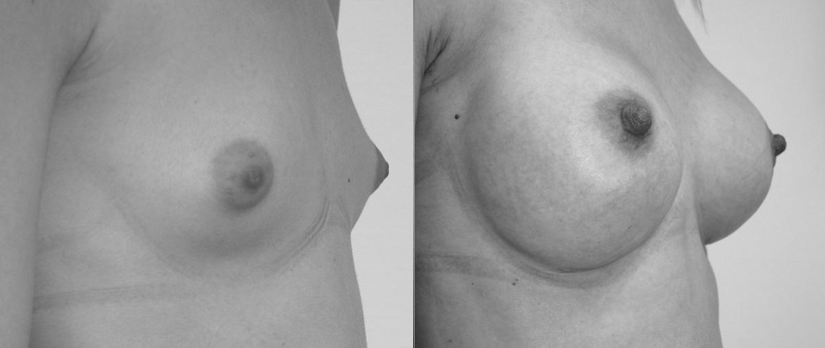 Prima e dopo Mastoplastica additiva
