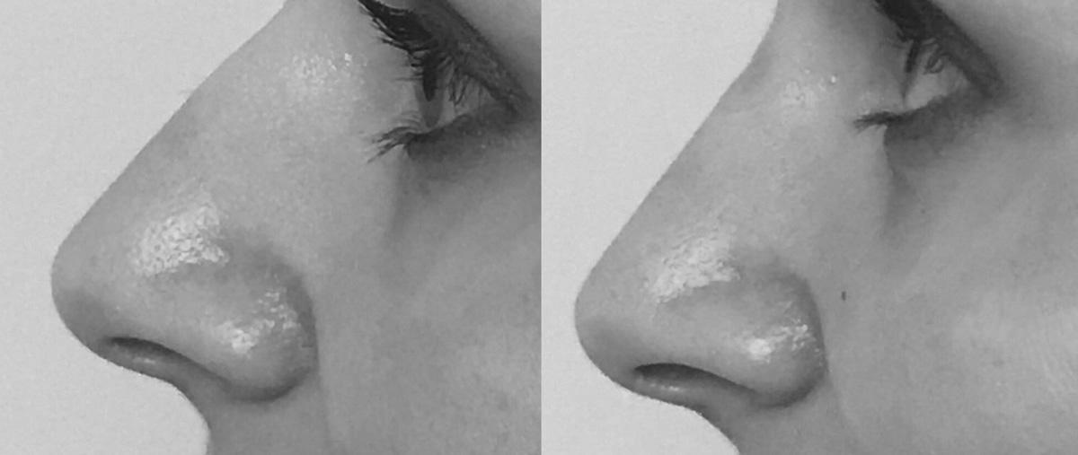 Prima e dopo Rinoplastica